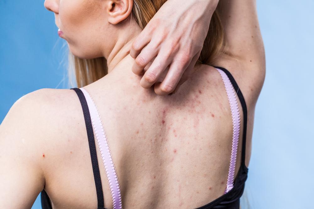 Dermatitis Hidrotica